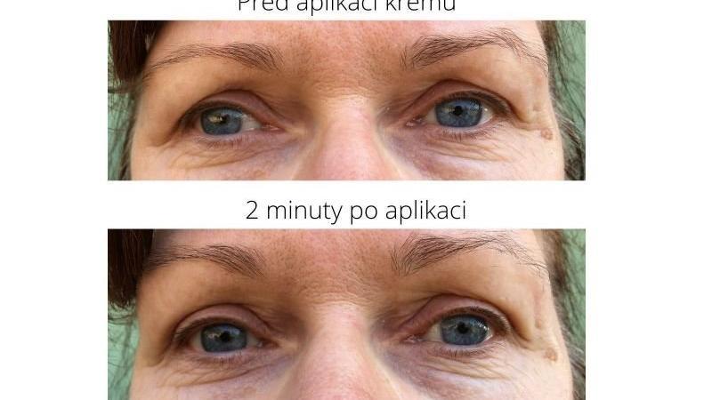 Výsledky jsou vidět hlavně na oku vlevo, víčko vpravo je více pokleslé a krém tolik nefunguje.
